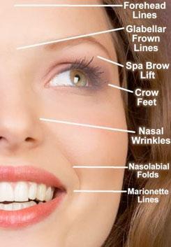 wrinklediagram